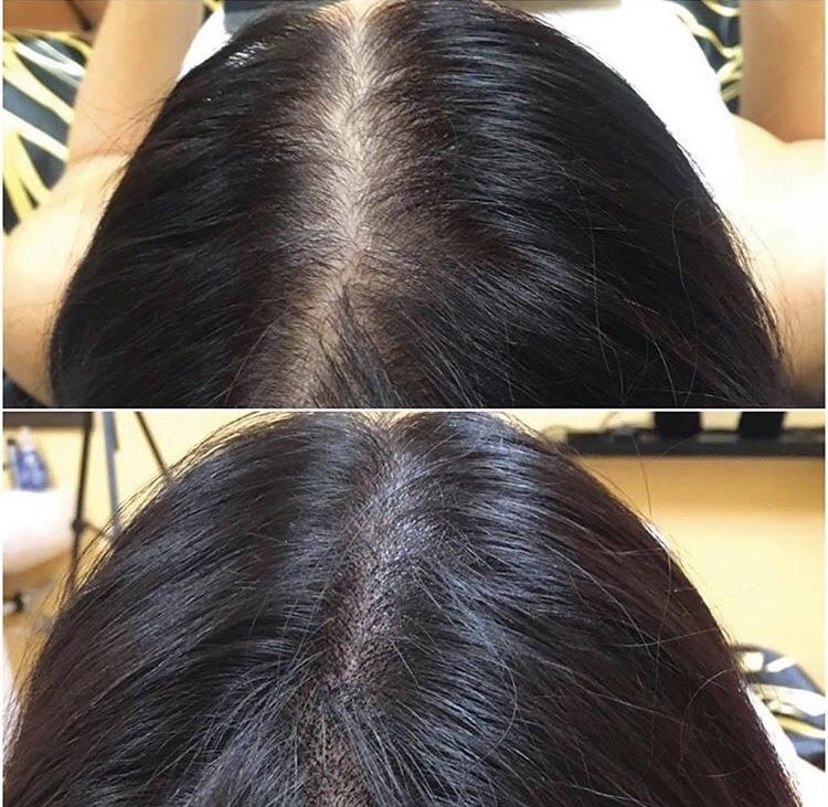best scalp micropigmentation