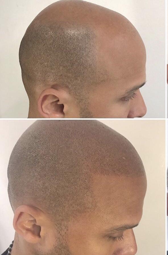 scalp micropigmentation women