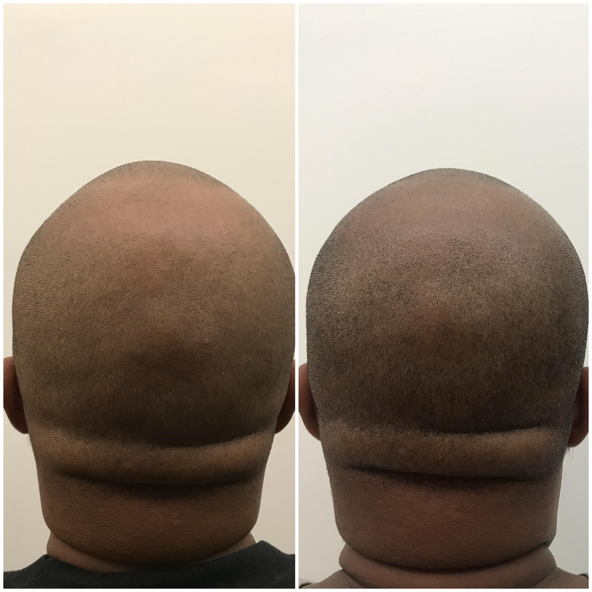 scalp micropigmentation near me