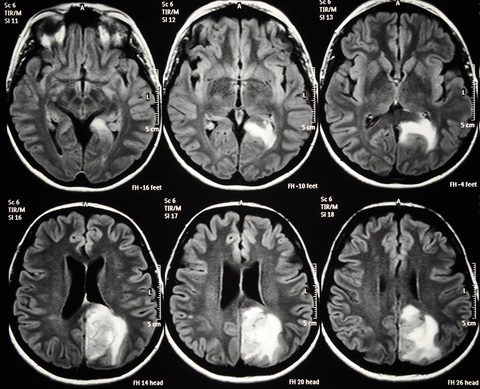 MRI scan showing Axial cut of the brain, with a left parietal glioblastoma, which is not linked to MS but shown for demonstrative purposes.