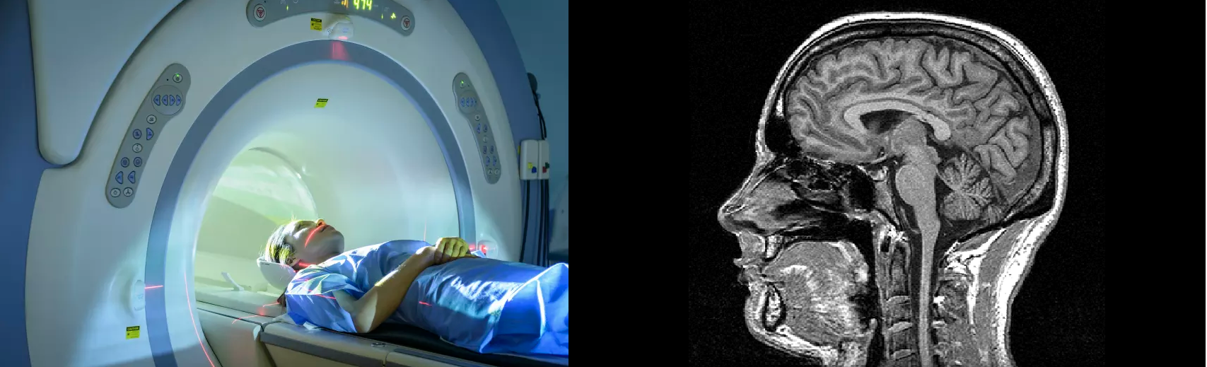 (Left) A patient entering an MRI scanner positioned to produce an image of the brain. Credit: Monty Rakusen, Getty Images. (Right) An MRI scan of the brain, hopefully displaying the time and effort it takes to correctly analyse an MRI scan. AI-assistance could be of great use in a field such as Radiology with the time-saving measures it promises, without compromising an expert level of accuracy. Credit: BrainFacts