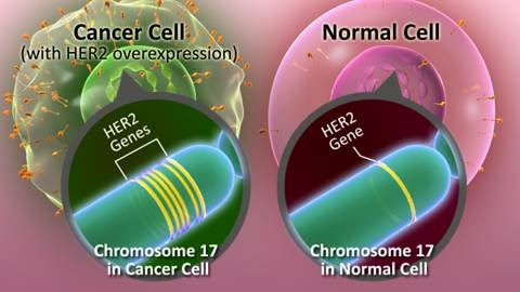 A (basic) representation of the over-expression of chromosome 17 on the HER2 gene when mutated, which the basis of its cancerous consequences. Credit: CancerResearch UK, Breastcancer,org, Fda.org via CiteThisForMe