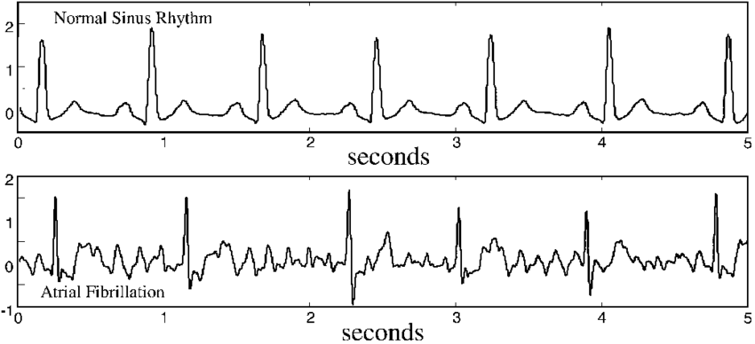 An electrocardiogram of Sinus Rhythm (top) and Atrial Fibrillation (below). The erratic lines between the QRS complexes depict over-firing of electrical impulses in the atria, causing the fast and chaotic heartbeat note in atrial fibrillation. Credit: ResearchGate