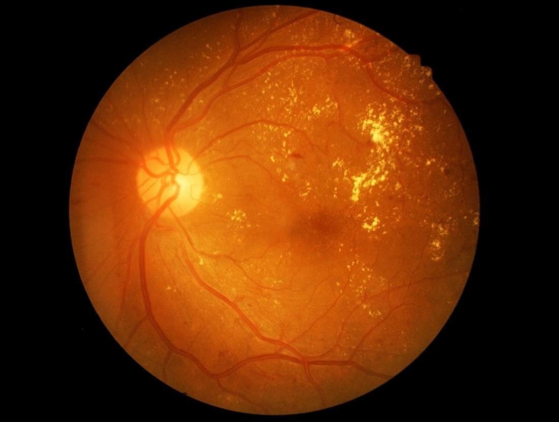 A retinal image of diabetic retinopathy, you can see soft and hard exudates on the right hand side of the image (pale scatters), with various haemorrhages and microaneurysms Credit: Medical News Today  (annotated example  here  via mdpi.com)