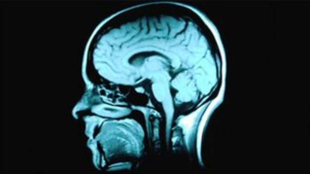 Other MRI scans can produce images of other areas of the body including the brain. Source: BBC News