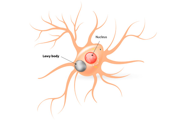 Lewy Body Dementia (LBD), is estimated to effect approximately 1.4 million Americans. LBD includes patients from both dementia with Lewy bodies and Parkinson's disease dementia diagnoses. People with LBD often experience the same symptoms as Alzheimer's patients, in addition to sleep disturbances, visual hallucinations, muscle rigidity or other Parkinsonism physical and cognitive impairments.