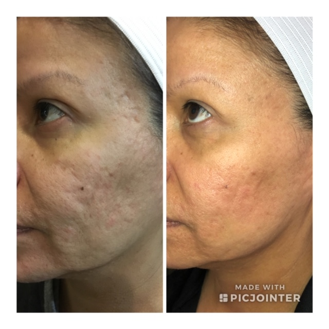 Vivace RF Microneedling — SkinPlus MedSpa