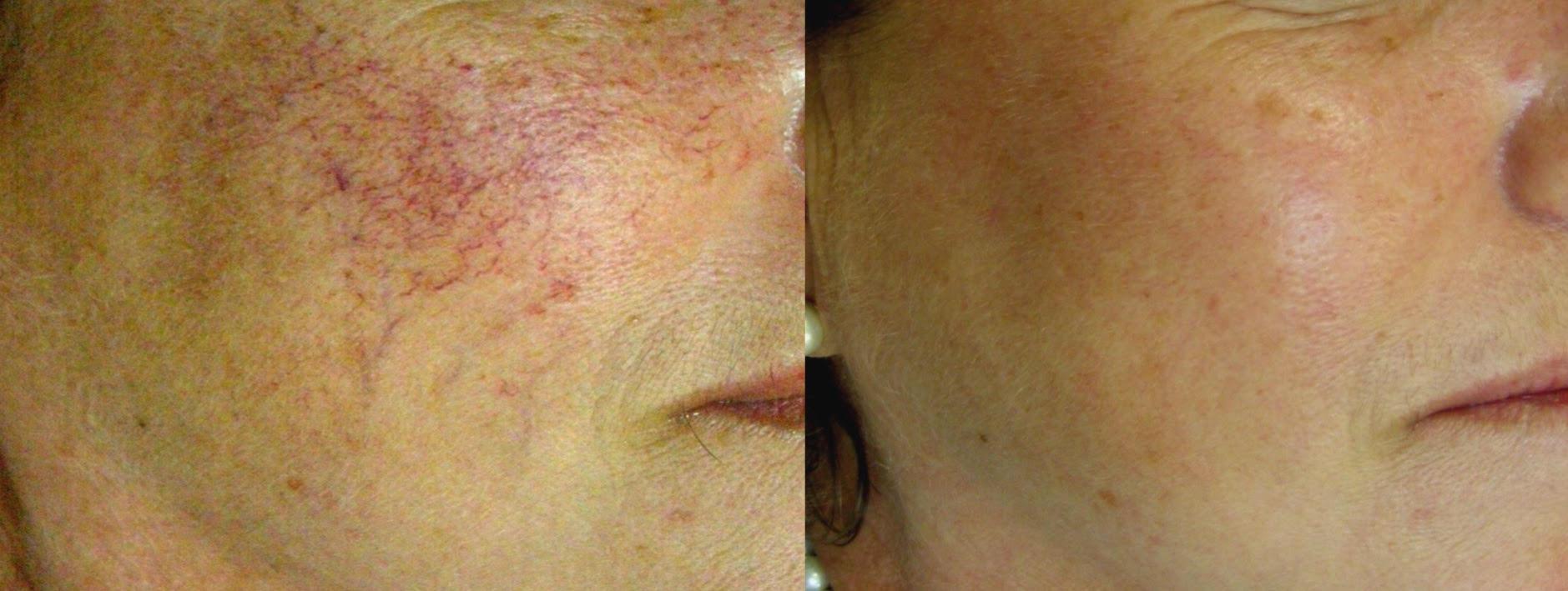Elite Laser — SkinPlus MedSpa
