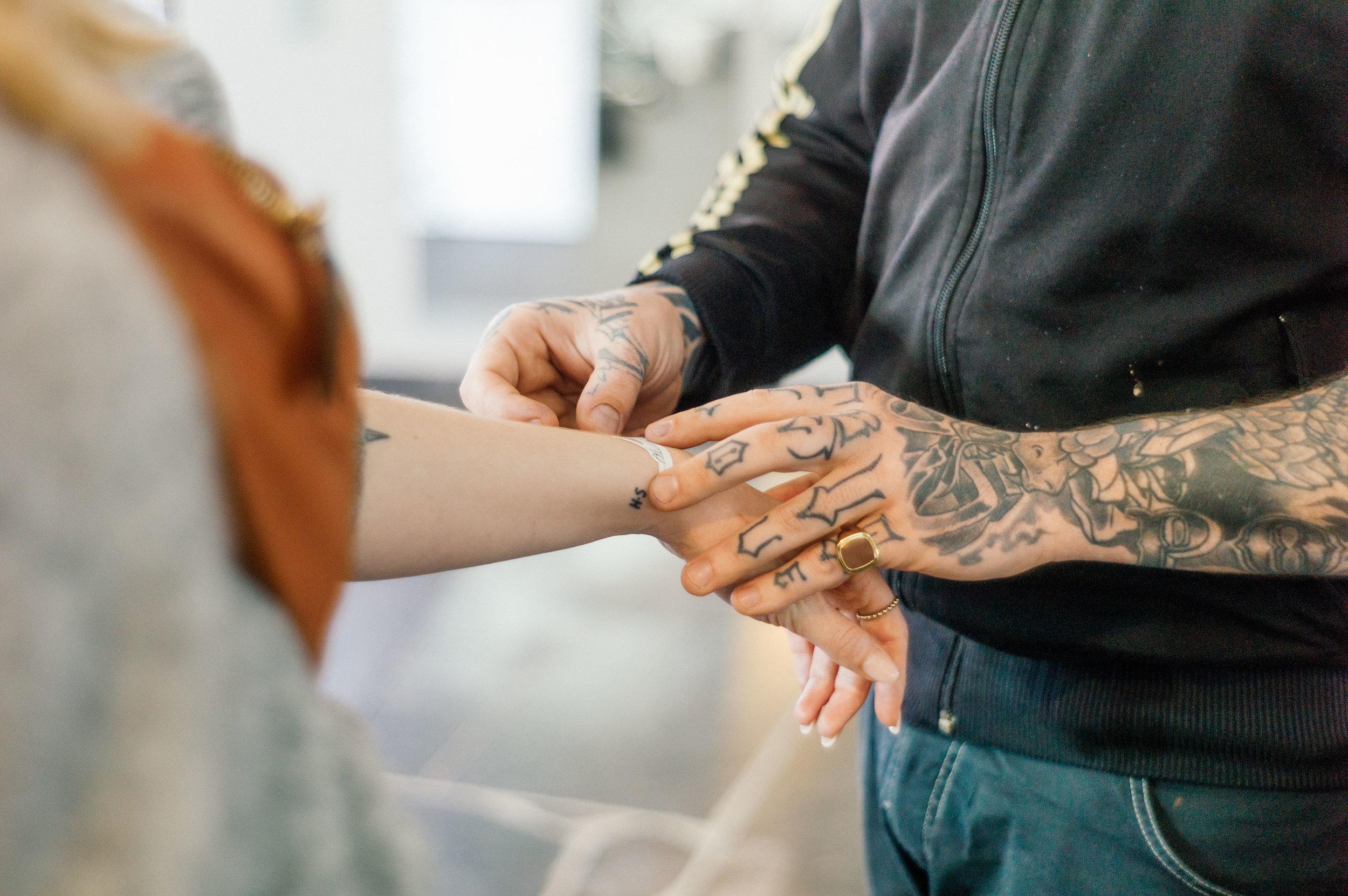 Tattoo Removal - 2 Different Methods of Non Invasive Pigment Lightening