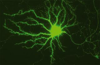 Nerve-Cell-1.jpg