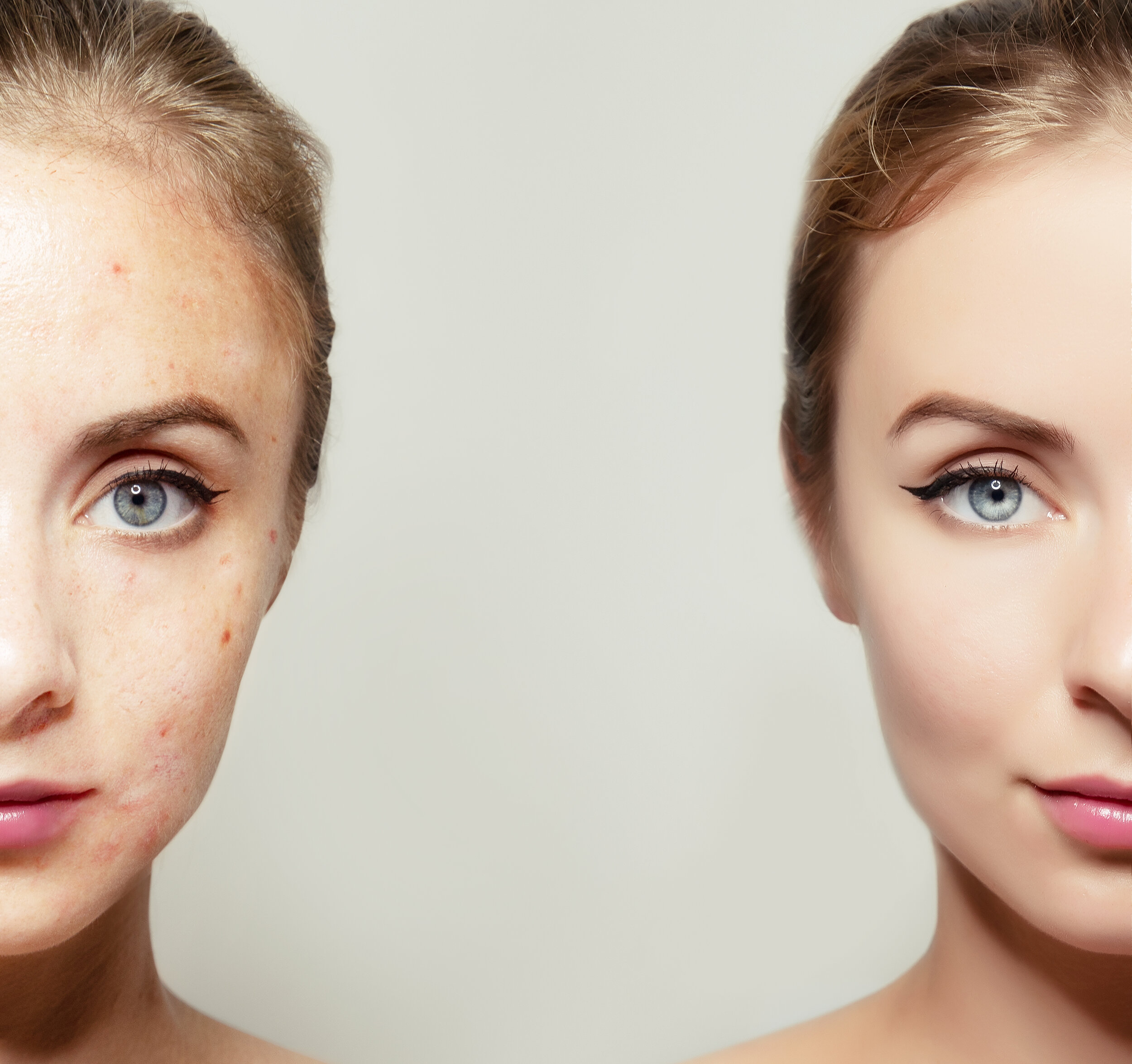 - What is your skin concern?Why What You Put On Your Skin Matters.