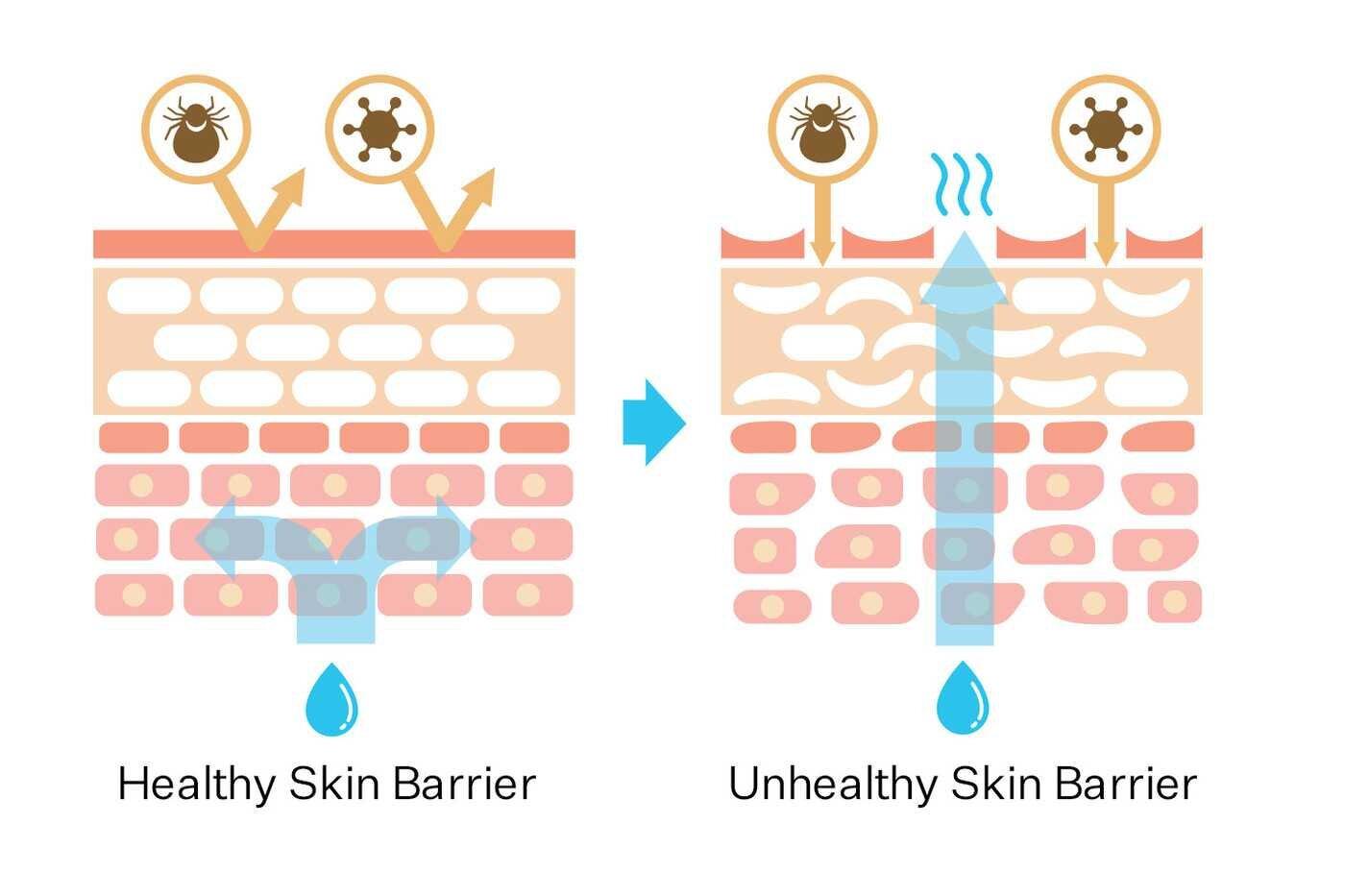 Skin Barrieris the key. - How can we repair skin barrier?