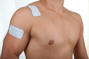 Shoulder+pain+electrode+placement.jpg