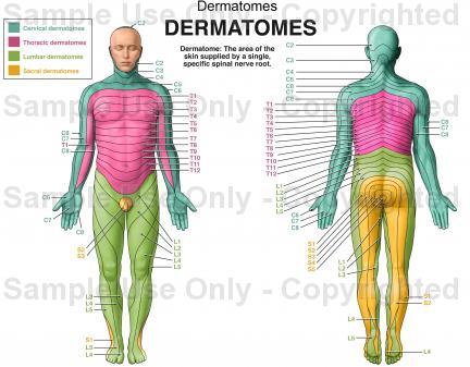 Dermatomes.jpg