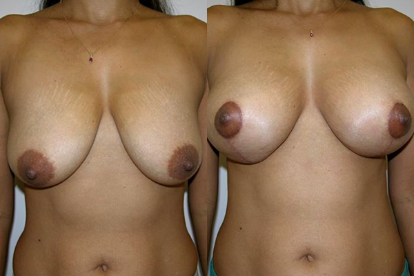 breast3.png