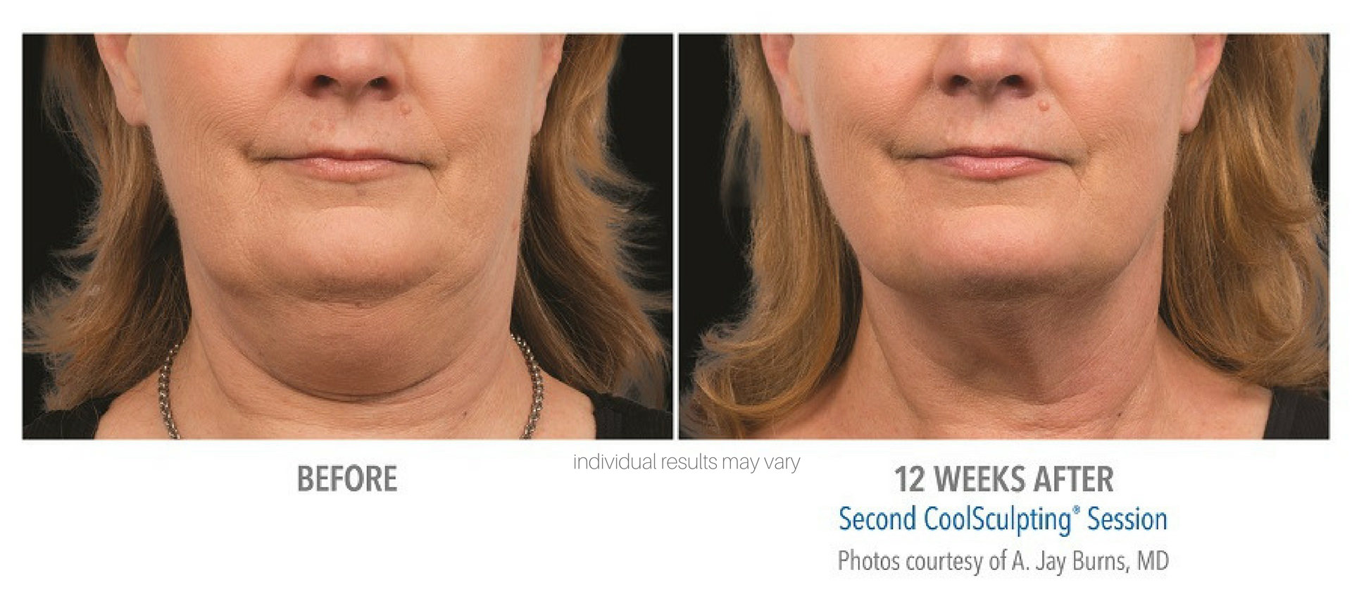 CoolSculpting-Before-and-After-2.jpeg