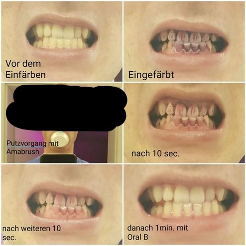 """Vor dem Einfärben = Before using the developer (a solution similar to the GUM red we used) Eingefärbt = After using the coloured solution to reveal plaque Putzvorgang mit Amabrush = Use of Amabrush Nach 10 sec = After 10 seconds (of """"brushing"""") Nach weiteren 10 sec = After 10 additional seconds (i. e. 20 seconds of brushing) Danach 1 min. mit Oral B = After 1 minute with a classic - toothbrush - Oral B Photo Credit: zvg"""