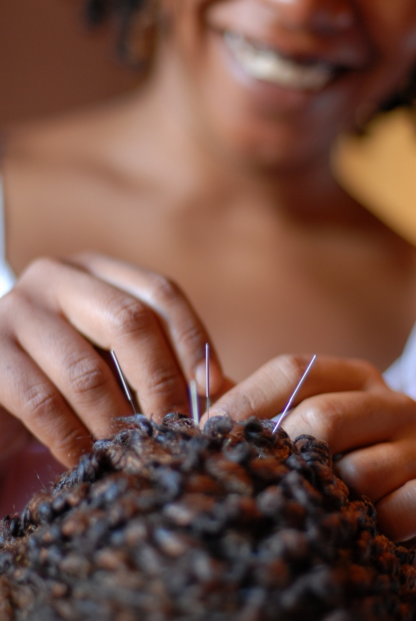 acupuncture-treatments.jpg