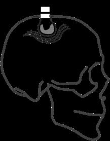 NeuroBTI.png
