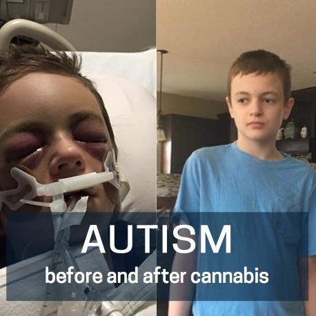 Autism-cannabis.jpg