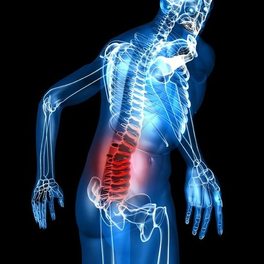 arthritis-spine.jpg