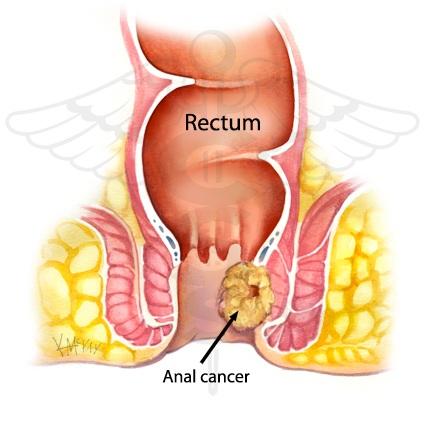 anal-cancer.jpg