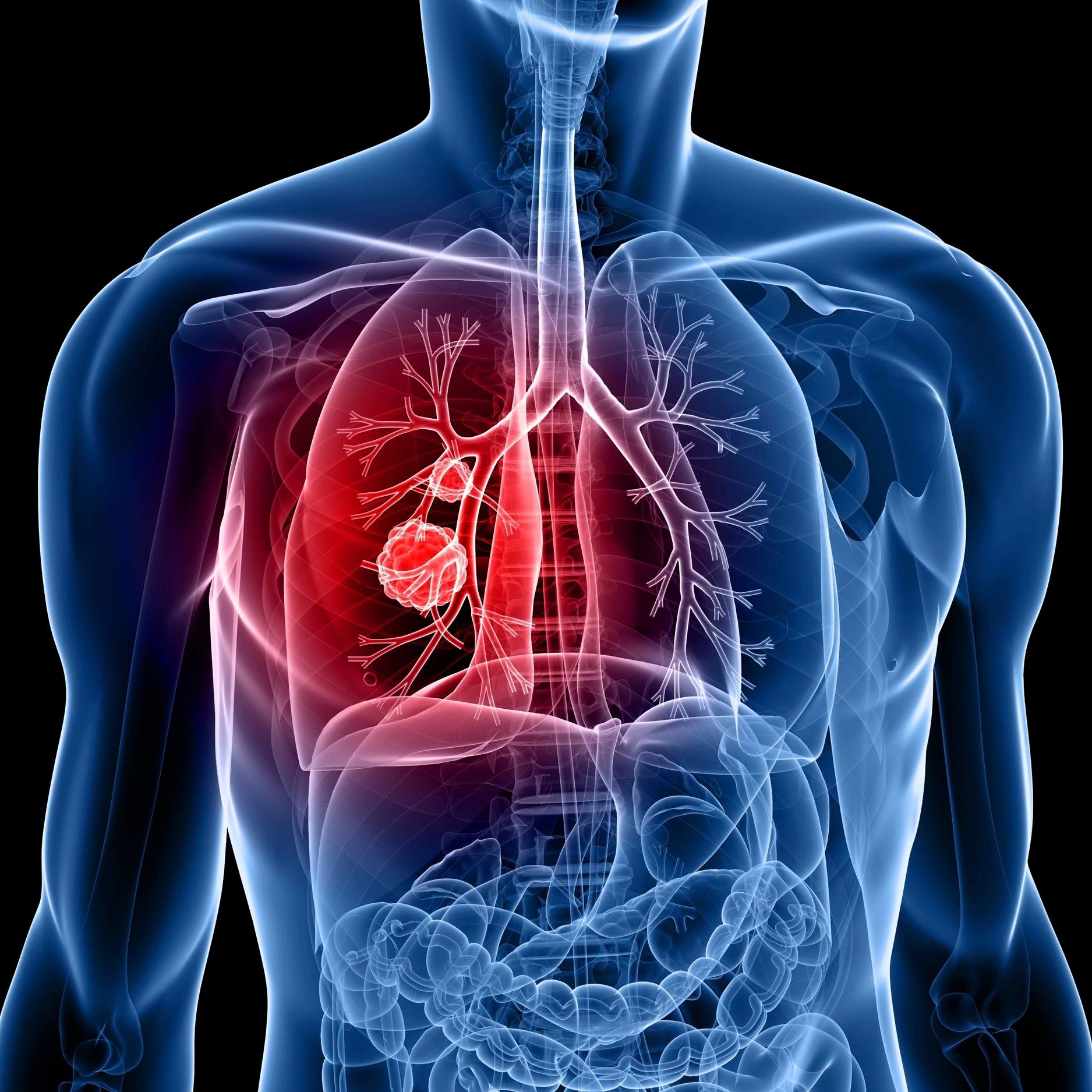 lung-cancer.jpg