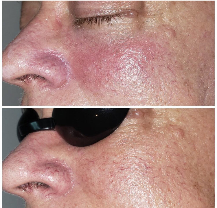 One IPL Laser Facial, targeting rosacea, performed by Jessica at Tres Belle Spa,