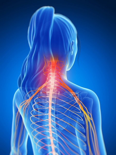 Neck pain can travel up to the head or down the arms and hands, as well as into the mid-back region.