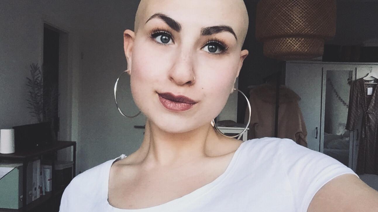 Im Jahr 2018 entschied sich Sophia ihre letzten Haare abzurasieren & fühlt sich seit dem befreit. / ©Sophia Papalamprou