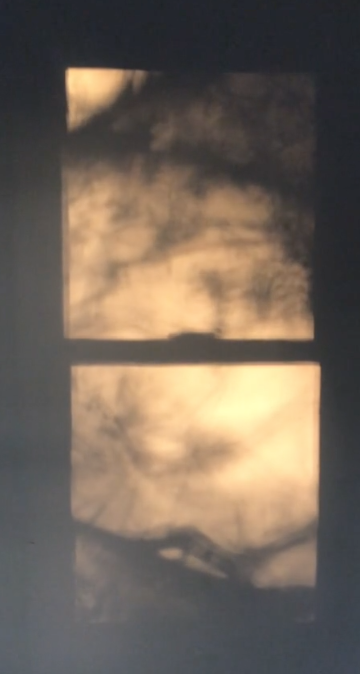 Tree Shadow 2.png