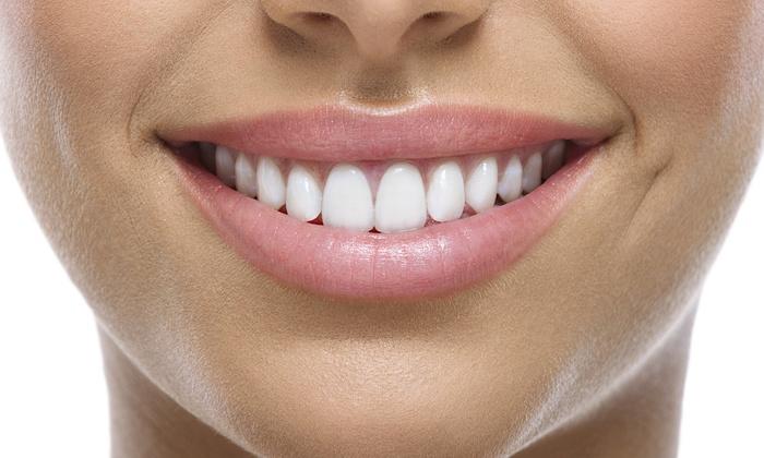 Dental Smile Makeovers.jpg