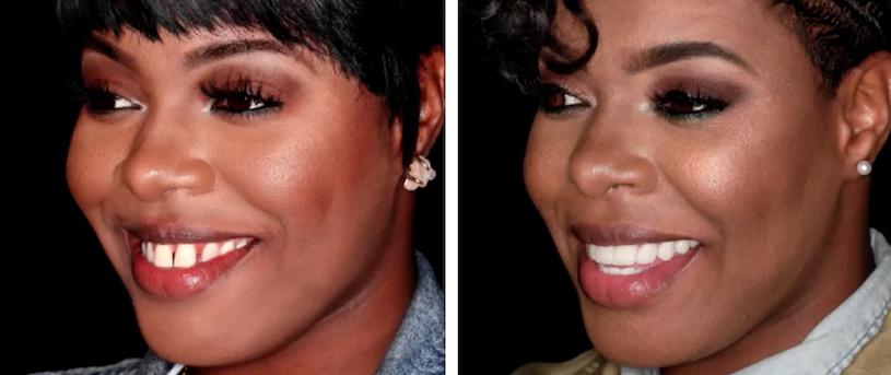 tarhonda-jones-smile-before-&-after.jpg