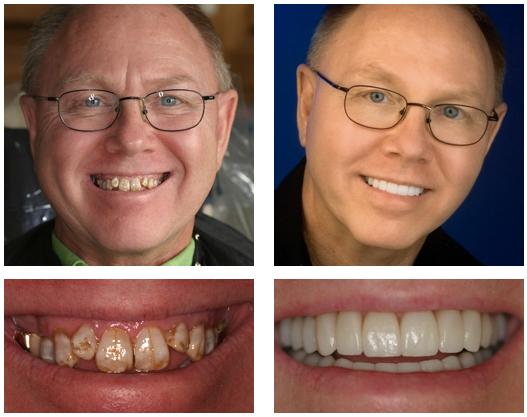 New You Dentures™, advanced dentures,