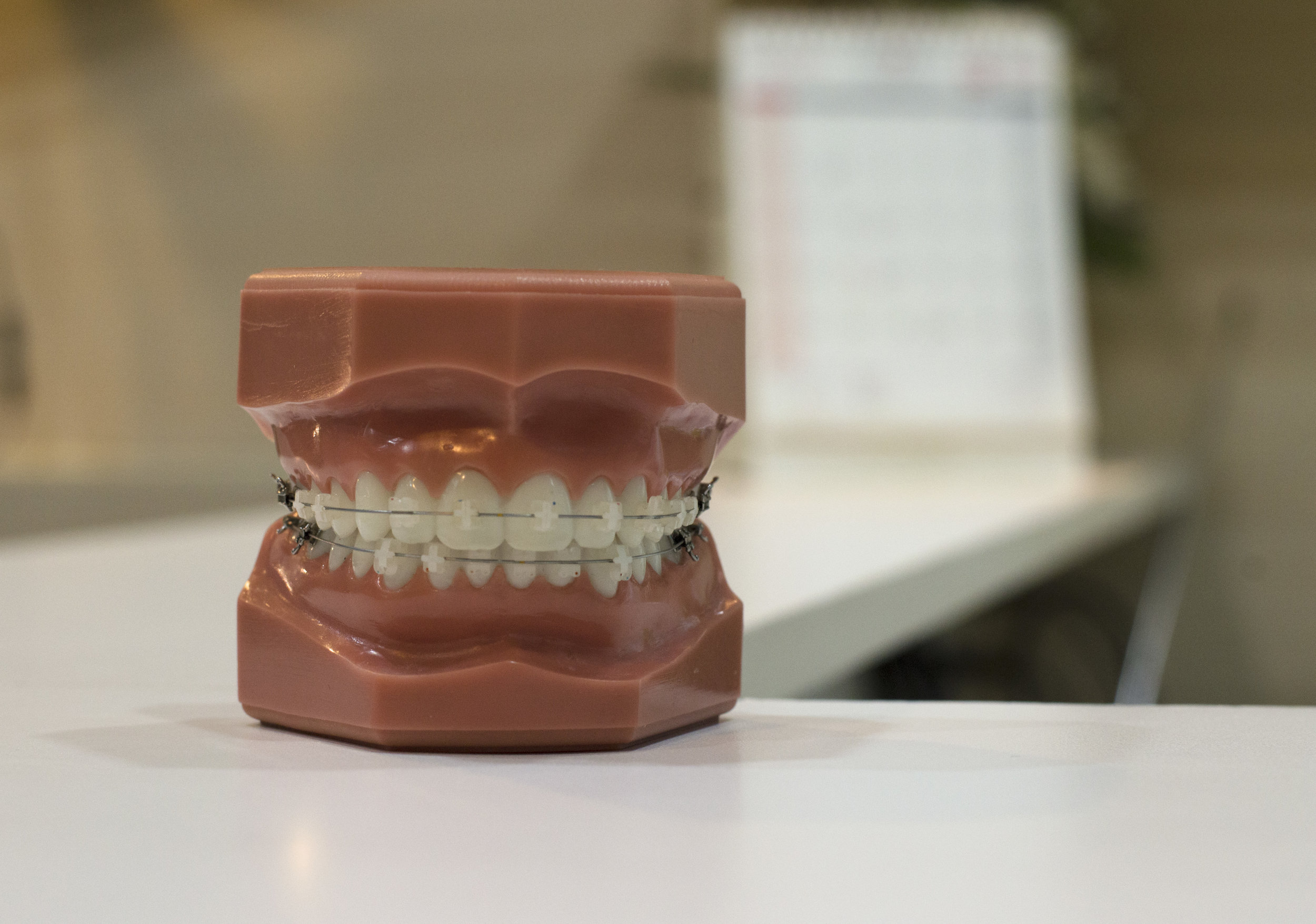 missing teeth dental bridge
