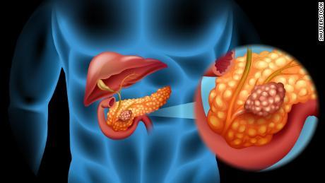 180615171544-pancreas-cancer-illustration-stock-large-169.jpg