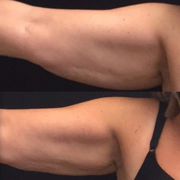 Coolsculpting-arm-e1539723551575.jpg