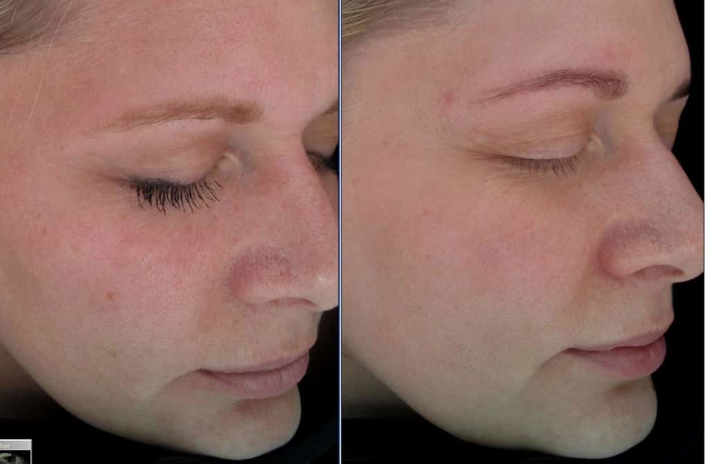 BBL-6-months-after-1-treatment-sun-damage-and-pores-1024x669.jpg