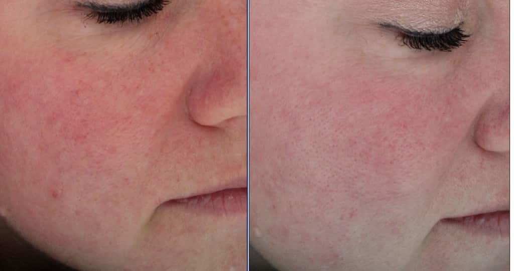 BBL-x3-moderate-rosacea-cheek-view-1024x540.jpg