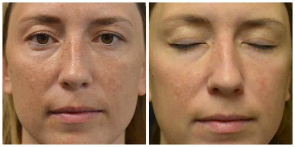 Melasma-Peel-1-treatment-before-BBL-1024x512-1.jpg