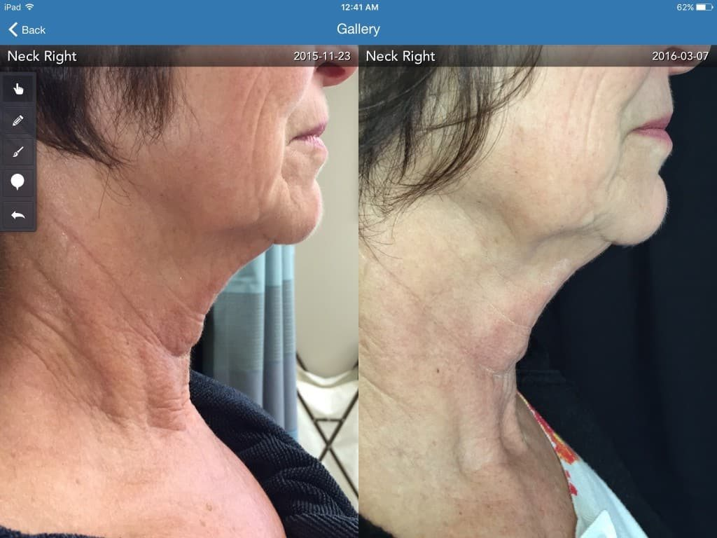 Protege-neck-3-treatments-90-day-before-and-after-1024x768.jpg