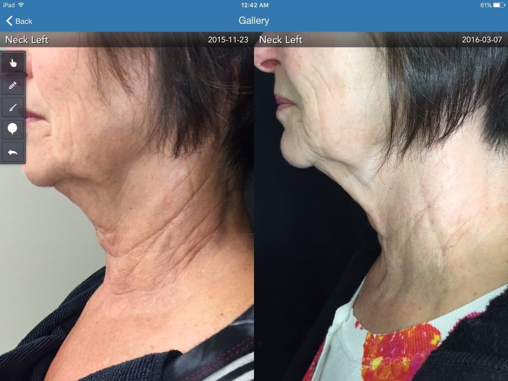 Protege-Neck-3-treatments-1024x768.jpg