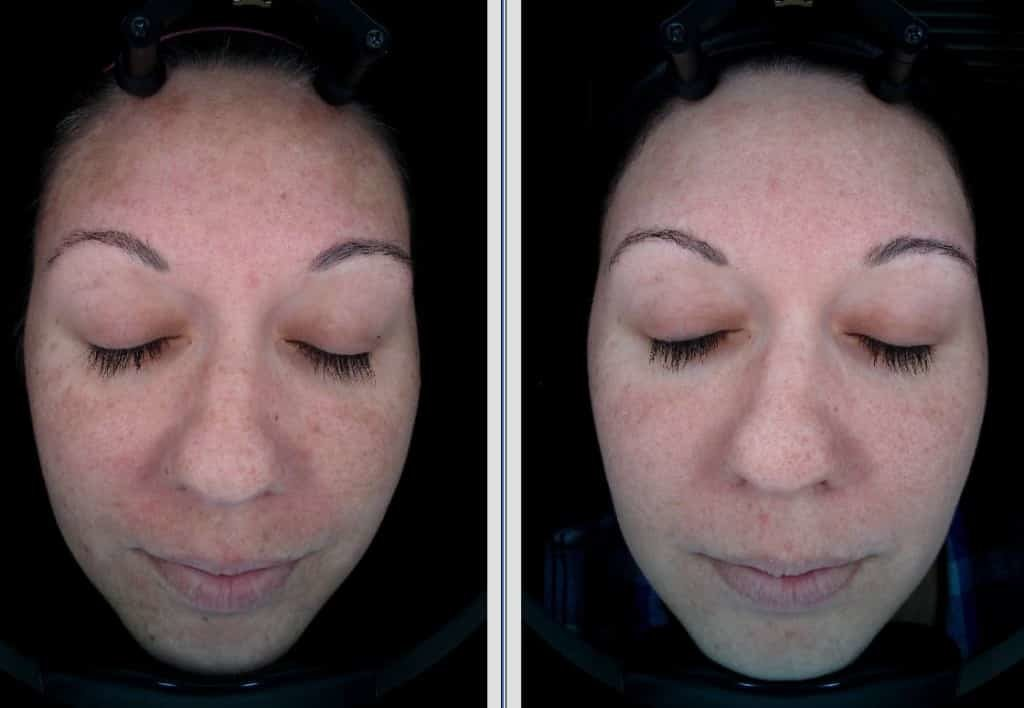 Halo-x2-for-melasma-1024x708-1.jpg