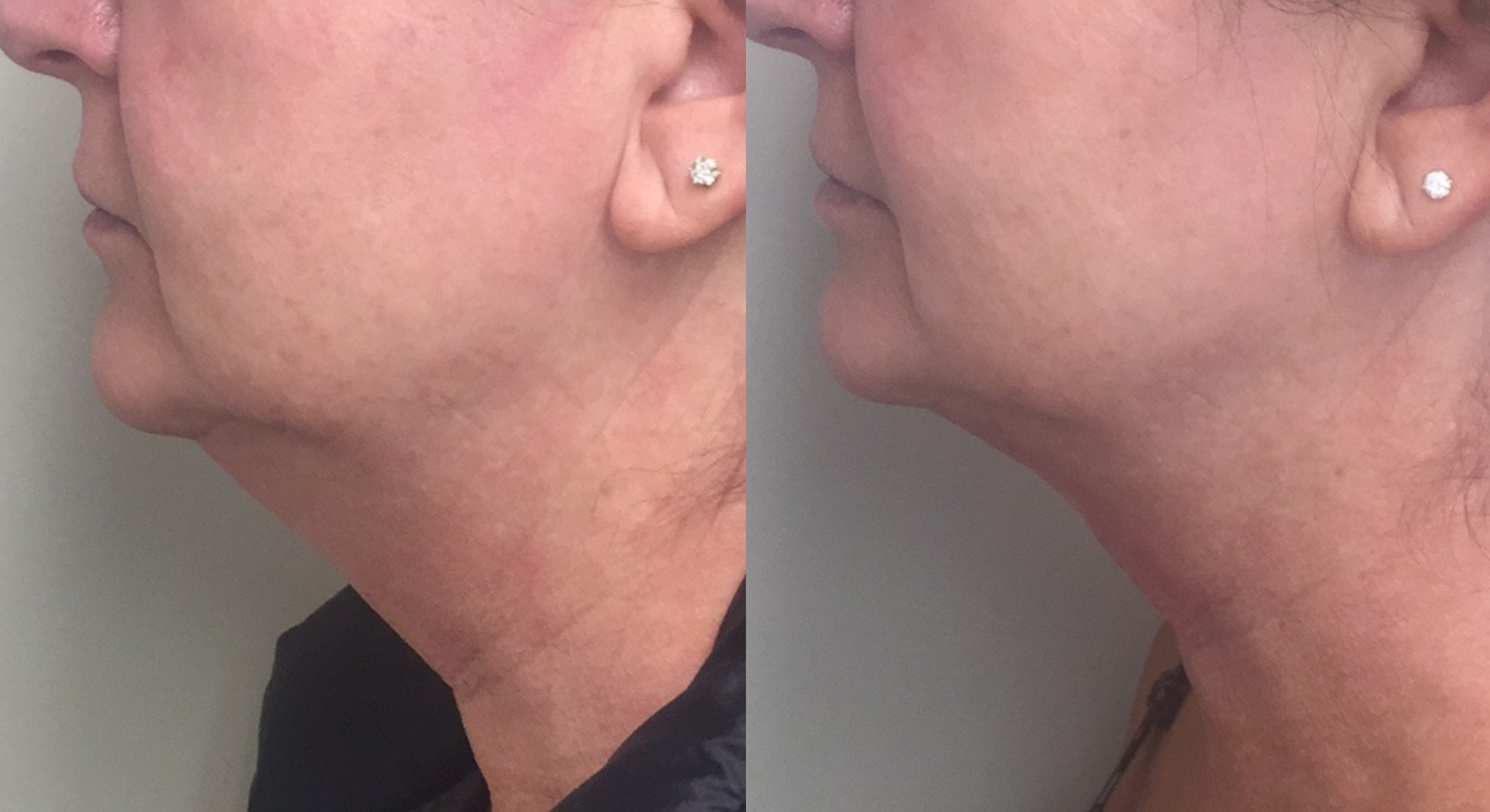 Kybella-1-treatment-L-side-2.jpg