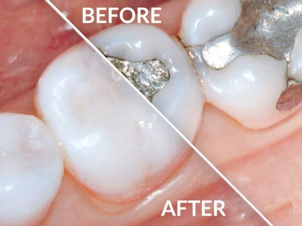 BeforeAfter_mercury-free tooth.jpg