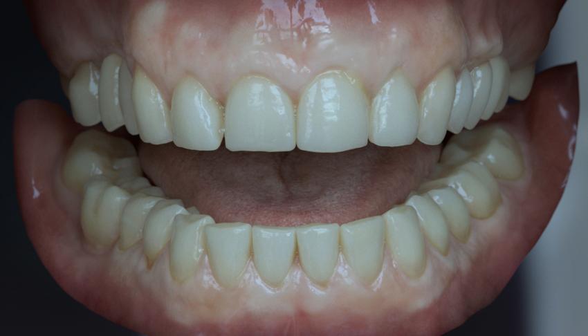 Teeth2_1.jpg