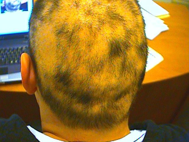 Syphilitic Alopecia - This is the hair loss that occurs with the secondary stage of syphilis.
