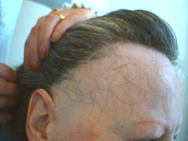 Frontal Fibrosing Alopecia - Generally occurs along the frontal hairline and around the ears in the post-menopausal women.