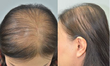 Female Pattern Hair Loss - Female pattern hair loss is characterised by thinning of hair in the front/top areas of the scalp.
