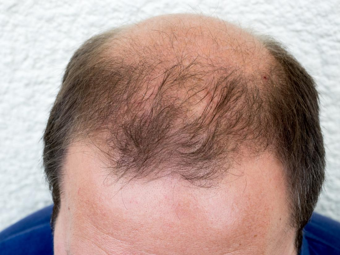 Male Pattern Baldness - More than 95% of all cases of hair loss in men are Androgenetic Alopecia, otherwise known as Male Pattern Hair Loss.